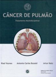 Livro Cancer de Pulmao - Tratamento Multidisciplinar  Buzaid