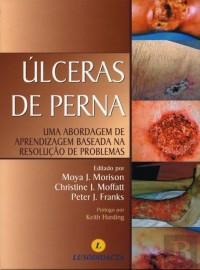Prevenção e Tratamento de Úlceras de Pressão (Português) por Moya J. Morison 9898075252